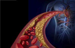 ulei de masline extravirgin beneficii asupra sanatatii