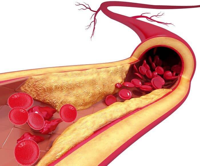 ateroscleroza beneficiile uleiului de masline