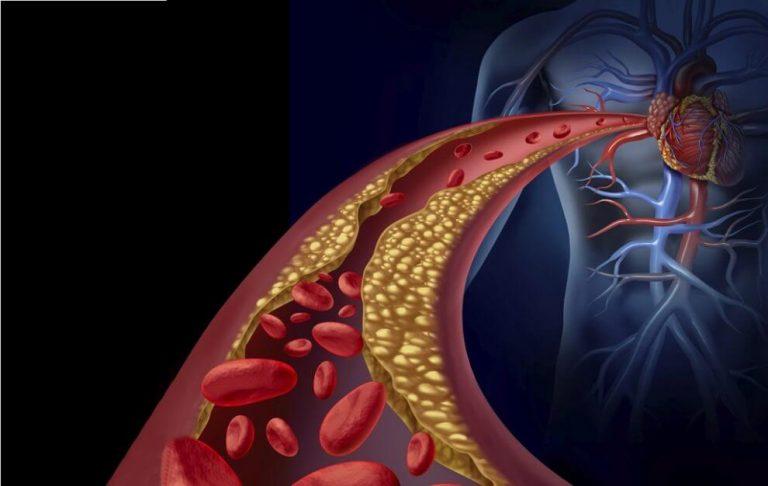 beneficiile uleiului de masline asupra reducerii colesterolului