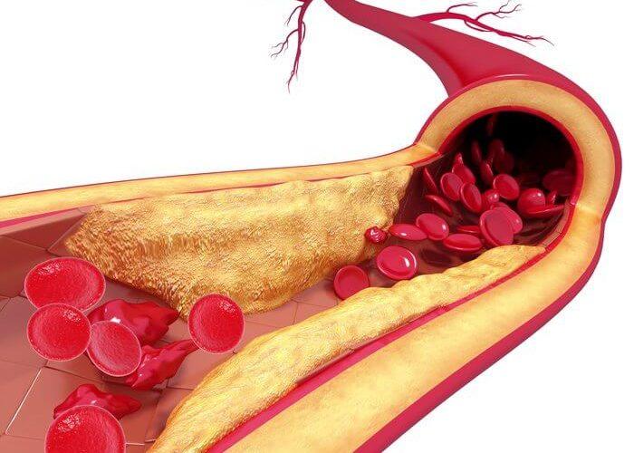 ulei de masline extravirgin beneficii asupra sanatatii prevenire ateroscleroza